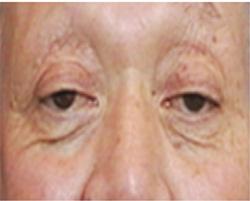 眼瞼下垂手術Before