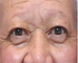 眼瞼下垂手術After