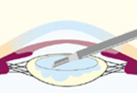 2.水晶体の中身を吸出のイメージ画像