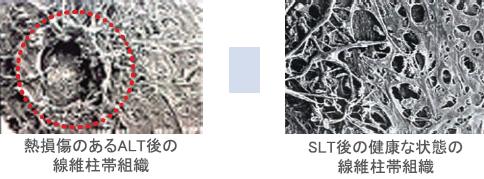 ALT後とSLT後の線維柱帯組織