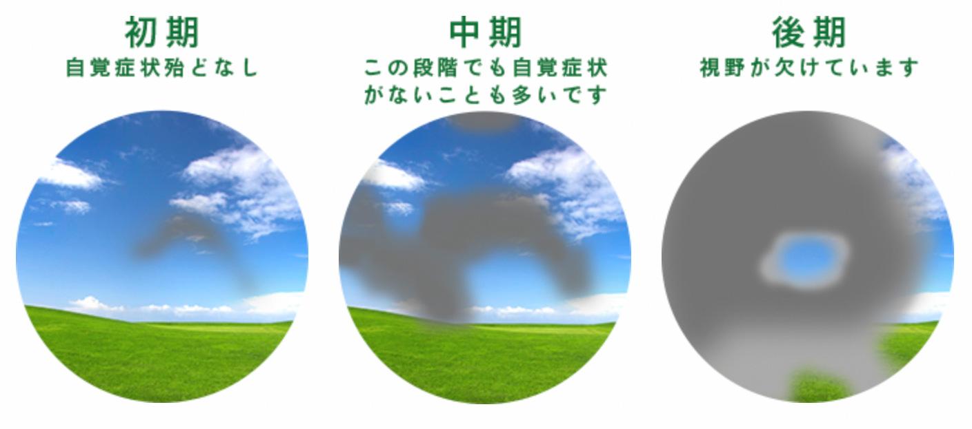 緑内障のイメージ画像