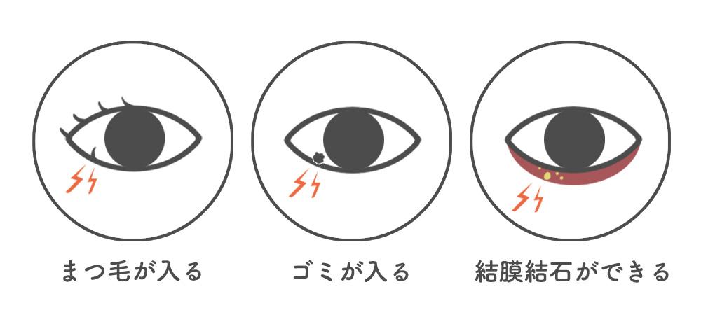 目がゴロゴロの原因と症状