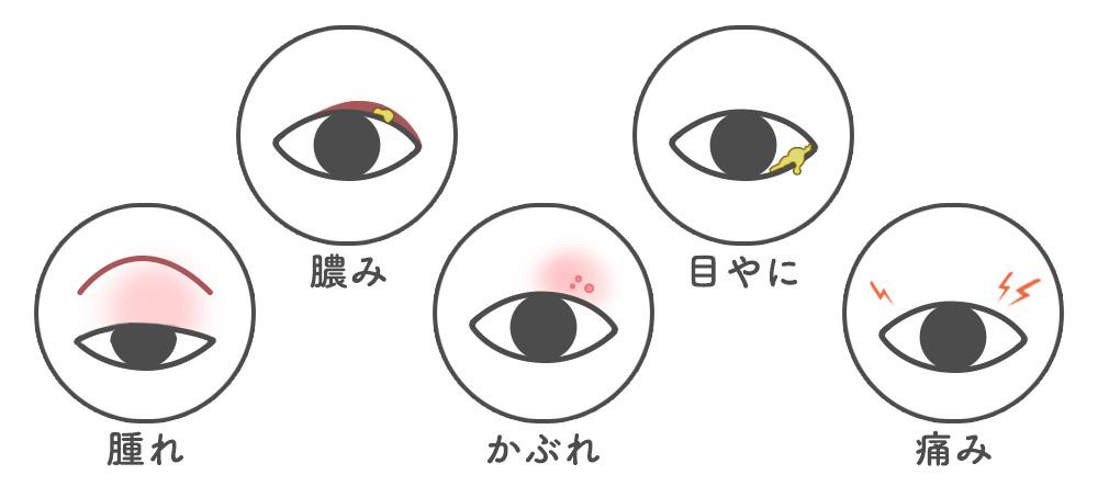 目やまぶたの腫れの原因と症状