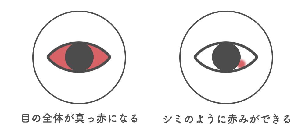 目が真っ赤になる原因