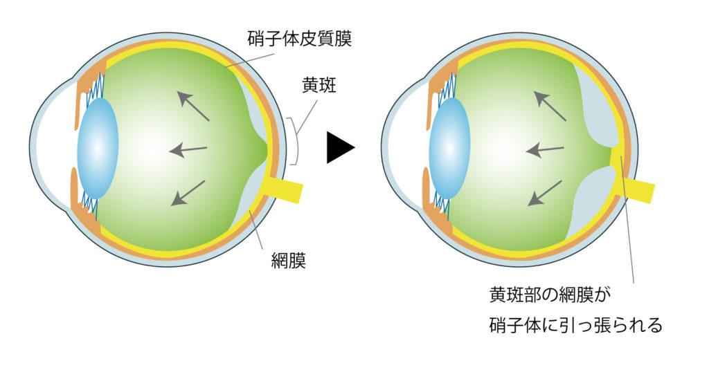 硝子体黄斑牽引症候群